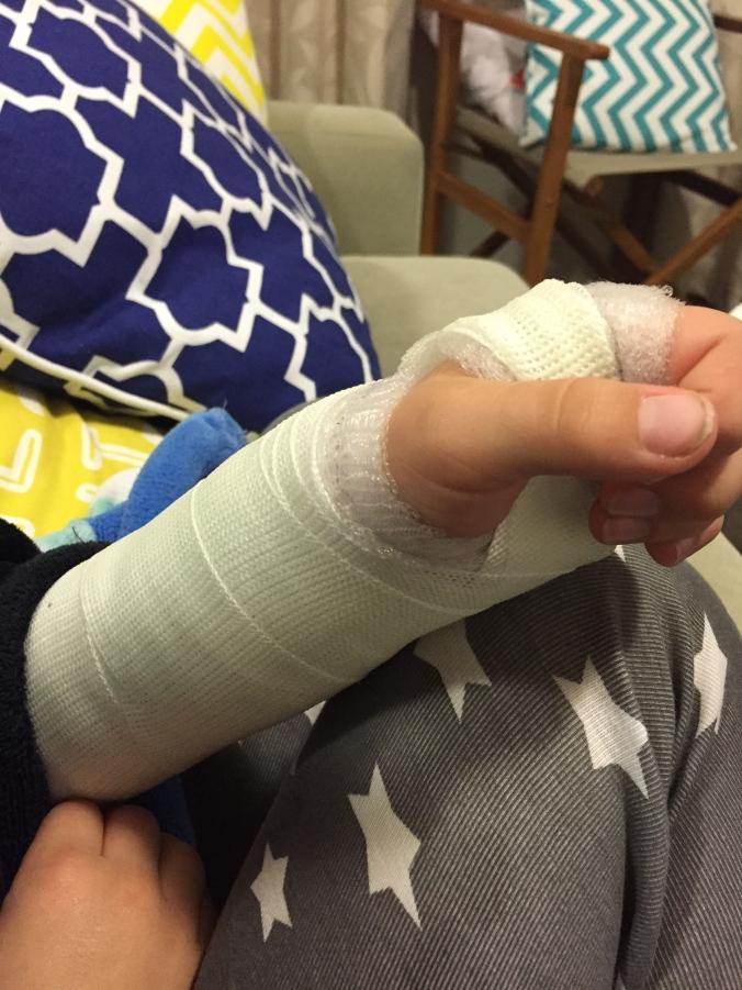 The broken wrist